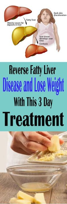 Reverse Fatty Liver Disease and Lose Weight With This 3 Day Treatment!