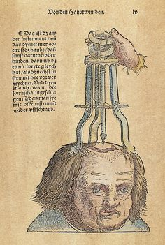 SKULL OPERATION, 1517. The extraction of a bone fragment from the brain resulting from a skull fracture. Woodcut from the first edition of Hans von Gersdorff's 'Feldtbuch der Wundartzney' (Guide to Surgery), Strassburg, 1517.