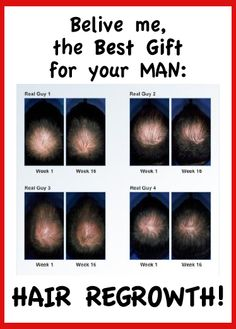 Belive me, the Best Gift for your MAN:  Hair Regrowth!    for Alopecia