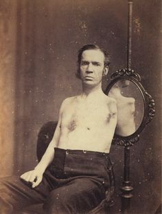 tuesday-johnson:  ca. 1874, [portrait of a gentleman who underwent a shoulder amputation], James Robinson, D.D.S. via A Morning's Work: Medical Photographs from the Burns Archive, Stanley B. Burns