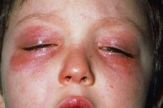 Conjunctivitis or Pinkeye Causes, Symptoms and Treatment:Type of Infectious Pinkeye are viral pinkeye, bacterial pinkeye.pinkeye causes and symptoms is tear Musculoskeletal System, Chiropractic Care, Pink Eyes, Alternative Medicine, Trending Topics, Light Colors, Fashion Photography, Tumblr, Polyvore