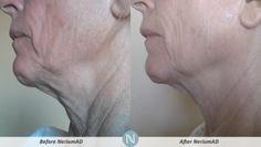 More amazing results from Nerium AD Night Cream :-) www.lookgoodfeelgreat.theneriumlook.com   #nerium #neriuminternational #neriumfirm #realresults