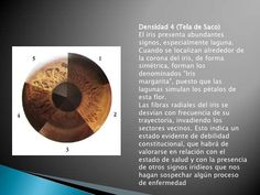 Densidad 1 (Seda)Las fibras del iris casi no se observan, no presentan ondulaciones, ni lagunas ni señales blancas de irri...