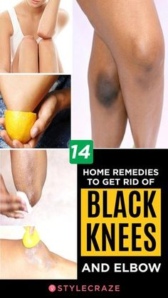 14 Home Remedies To Get Rid Of Black Knees And Elbow: Does having dark knee caps and elbows make you conscious and leave you feeling uncert. How To Lighten Knees, Lighten Skin, How To Lighten Armpits, How To Whiten Underarms, Skin Care Remedies, Home Remedies, Herbal Remedies, Health Remedies, Natural Beauty Remedies