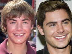 10 Before And After Dental Care Photos Prove Good Teeth Can Change Your Face