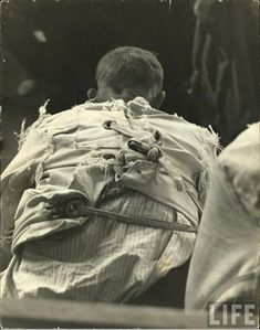 A Patient Sits in a Worn Straitjacket, taken in Pilgrim State...