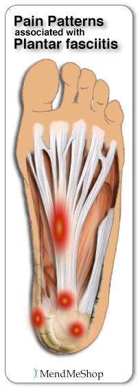 Plantar Fasciitis and Heel Spur Pain Mapping