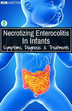 Necrotizing Enterocolitis In Infants – Symptoms, Diagnosis & Treatments