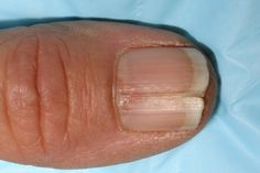 Best Tips To Stop Nails Splitting