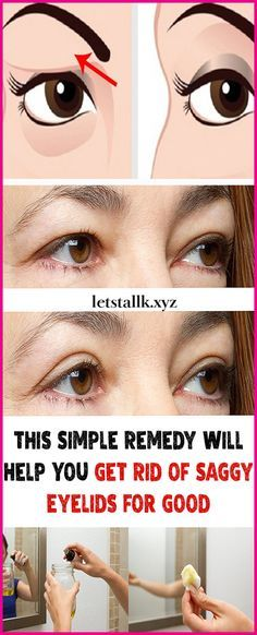 Get Rid of Saggy Eyelids for Good#fitness #beauty #hair #workout #health #diy #skin #Pore #skincare #skintags #skintagremover #facemask #DIY #workout #womenproblems #haircare #teethcare #homerecipe
