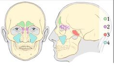 Sinusitis Remedies Sinus Infection Remedies (And Why You Might Not Need Antibiotics) - Most sinus infections are caused by viruses, and antibiotics don't help. These sinus infection remedies may improve your odds of success. Congestion Relief, Chest Congestion, Antibiotics For Sinus Infection, Natural Sinus Relief, Paranasal Sinuses, Maxillary Sinus, Sinus Surgery, Sinus Infection Remedies