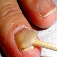 Behandeln schnell nagelpilz Nagelpilz behandeln?