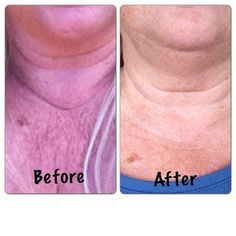 It Works Wrap Results  Nanners1.itworks.com