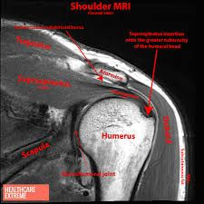 Image result for mri anatomy shoulder