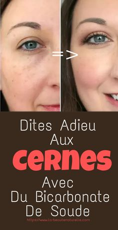 Are you already tired of seeing these dark circles under your eyes because they make you look tired and without energy? It's time for you to use a remedy to remove dark circles without damaging the skin of your face: sodium bicarbonate Beauty Care, Diy Beauty, Beauty Skin, Health And Beauty, Beauty Hacks, Homemade Beauty, Beauty Ideas, Healthy Beauty, Beauty Tips For Face