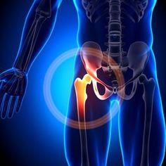 Ein Röntgenbild des Psoas Muskel in animierter Form