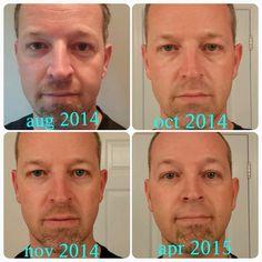 Look at the forehead!! Smooth!! Order today!! JasonandAlison.myrandf.com