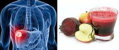 Cómo desintoxicar el Hígado - Una Introducción. - Vida Lúcida