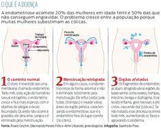 Novo tratamento para endometriose | Gazeta do Povo