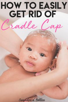 Fighting Cradle Cap- How to clear up your baby's scalp Crochets – Crochet models Baby Cradle Cap, Baby Supplies, After Baby, Baby Arrival, Baby Head, Newborn Care, Baby Hacks, Baby Tips, Mom Hacks