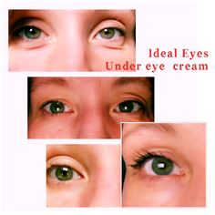 Ideal Eyes helps reduce under eye bags, and dark circles! The results are amazing from using Morning and night. Get yours ordered now!