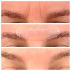 Frown lines before and after Acute care regimen. Launching January 2015 for Preferred Customers only! https://tonyahill.myrandf.com/
