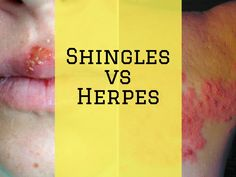 Herpes Simplex 2 - Causes, Signs, Symptoms, Tranmittion, Treatments and Permanent Cure Options. Manage and Cure Your HSV 2 Today! Genital Herpes Cure, Herpes Simplex Virus, Herpes Remedies, Vitamin C And Zinc, Types Of Diseases, Viral Infection, Skin Rash