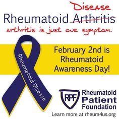 Rheumatoid Disease is not a type of arthritis. Arthritis is just one symptom. Yoga For Arthritis, Juvenile Arthritis, Natural Remedies For Arthritis, Rheumatoid Arthritis Treatment, Knee Arthritis, Arthritis Relief, Types Of Arthritis, Arthritis Exercises, Arthritis