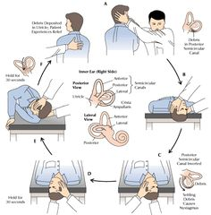 inner ear crystals Epley maneuver | Positional Vertigo: Get Medical Help | Dr Paulose @drpaulose