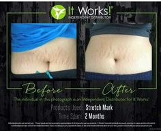 I need 10 momma's who have stretch marks and would like to knock them out  You get my 40% discount for being a 90 day product tester    Give your honest feedback  and say bye bye to stretch marks anywhere on the body ✌️✌  Text TESTER to 432.213.5785