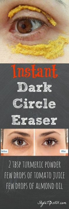 Dark Circles Remedy