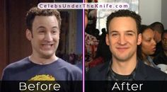 Boy Meets World of Plastic Surgery? Check out the pics for yourself and we'll let you decide whether they've had plastic surgery or not! Ben Savage, Rhinoplasty Before And After, Under The Knife, Celebrity Plastic Surgery, Jonathan Scott, Rowan Blanchard, Boy Meets World, Charli Xcx, Hrithik Roshan