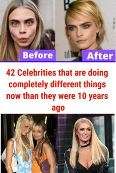 42 Celebrities that are doing completely different things now than they were 10 years ago Top 10 Actors, Celebrity Costumes, Disney Channel Stars, Celebrity Look, Actor Model, Celebs, Celebrities, Just Amazing, Popular Pins