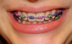 What Color Braces will Make Teeth Look White