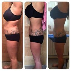 weight loss results in just 3 months using Phentermine. | Weight ...