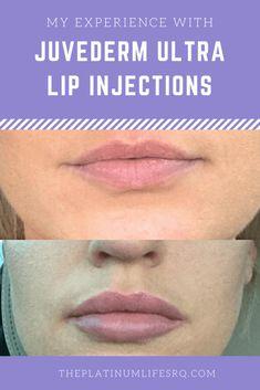 Lip Filler Before and After, Juvederm Ultra, Lip Injections, Restylane Lips Injections, Fillers