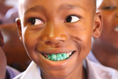 Boy with plaque disclosing solution on his teeth during a dental campaign at Donald Fraser Hospital