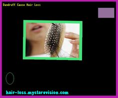 Dandruff Cause Hair Loss 072701 - Hair Loss Cure!
