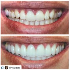 The bitterness of poor quality is remembered long after the sweetness of low price has faded from memory. Today's Makeover Monday features some veneers and some of my magic  via @dryazdan . .  Tag your friends #dentistry #dentist #dentista #teeth #tooth #medical #dental #dentalhygiene #vine #finals #md #dentalproblems #students #veneers #medicalstudent #makeover #medicalschool #college #dr #test #beforeandafter #dhschool #surgery #odontologia #odontología #orthodontics #odontopediatria…