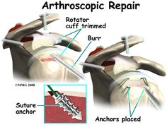 What to Do After a Rotator Cuff Tear Surgery?