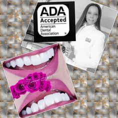 Best Dentist, Tourism, Smile, Good Things, World, Dental Implants, Cartagena Colombia, Turismo, Travel