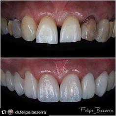 """138 Likes, 8 Comments - Emotional Dentistry (@emotional_dentistry) on Instagram: """"Boa segunda feira a todos. """"Nem só de porcelana se vive o homem""""  Parabéns @dr.felipe.bezerra…"""""""
