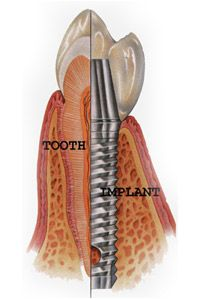 Dental Implants are the high technology answer for people missing one or more teeth.