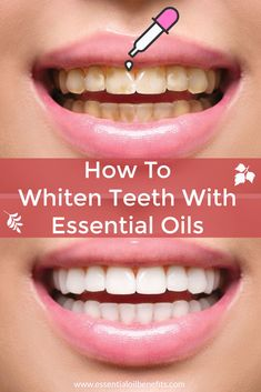 How To Whiten Teeth With Essential Oils Yellow teeth! Want to naturally whiten teeth at home! Find out the best essential oils, blends, home remedies and lifestyle changes for whiter teeth. Teeth Whiting At Home, Perfect Teeth, Cardio Training, Cardio Workouts, Stained Teeth, Teeth Bleaching, Natural Teeth Whitening, Essential Oils Teeth Whitening, Essential Oils