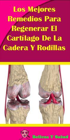Los Mejores Remedios Para Regenerar El Cartílago De La Cadera Y Rodillas. #Remedios #Cartílago #Rodillas #salud