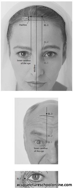 (BL-3) Eyebrows' Pouring MEICHONG - Acupuncture Points -1