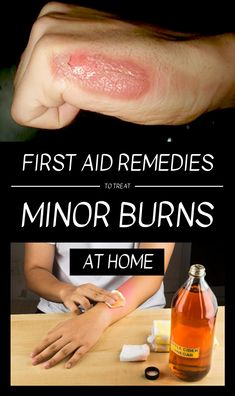 According to statistics, most of the burns occur in the kitchen. They are caused either by getting into contact with the cooker flame or by getting into contact with hot liquids or by accidentally … Skin Burn Remedies, Blister Remedies, Health Remedies, Home Remedy Teeth Whitening, Natural Teeth Whitening, First Aid For Burns, Burn First Aid, Natural Remedies For Burns