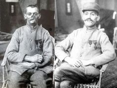A disfigured French veteran of the First World War demonstrates face mask designed to disguise his wounds, 1920. [1024x756]. - Imgur