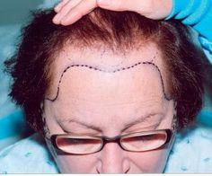 Kadınlarda Saç Nakli
