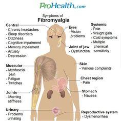 Sintomas de la fibromialgia.